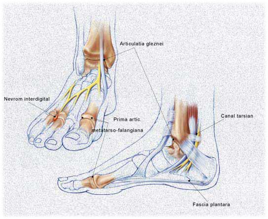 Durerea din partea laterala a coapsei renun?a