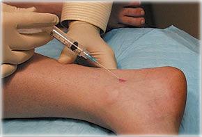injecții pentru tratamentul piciorului durerii articulare)