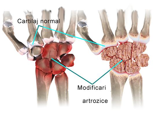 Sindromul de canal carpian