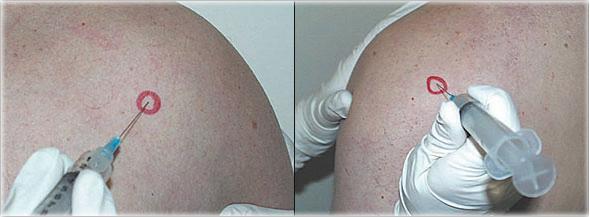 celestone steroid injections for preterm labor